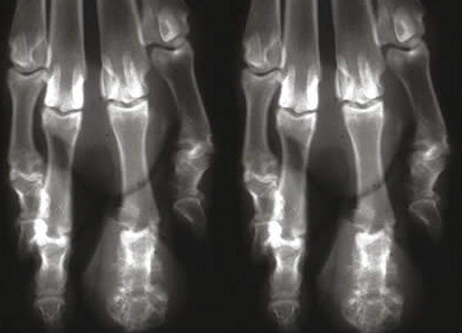 osteomielite-caes-1