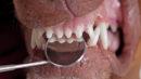 Endodontia em cachorros